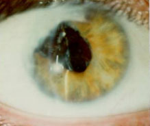 Meir's right eye, with maximum dilation. Less than 1% of the lens area admits light; the rest is scar tissue and membrane. Making the best possible use of badly damaged eyes, Meir sees about 20/80.