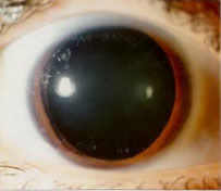 A normal eye dilated.  The black area is the lens, all of which admis light.